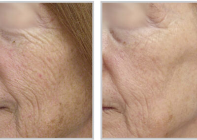 Before After MicroLaserPeel ™ The Woodlands TX East Shore Medspa